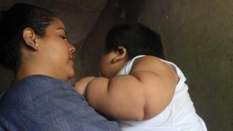 Bebé de 10 meses pesa 30 kilos, podría tener Síndrome de Prader-Willi
