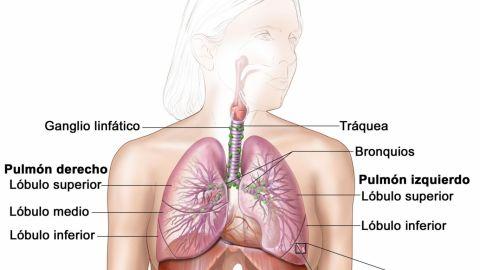 Presentan protocolo para detección oportuna de cáncer de pulmón