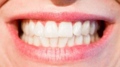 Dieta poco saludable y mala higiene afectan la salud dental
