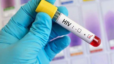 Paciente con VIH en Brasil podría ser el primer curado usando sólo medicación