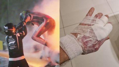 Grosjean muestra sus cicatrices tras accidente en F1