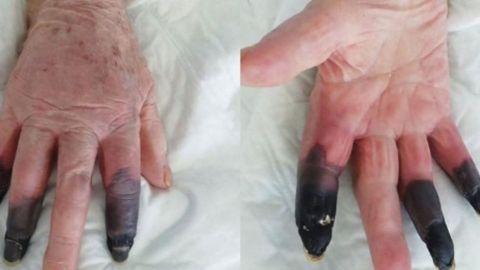 Mujer de 86 años se contagia de covid-19 y le provoca gangrena; le amputan dedos