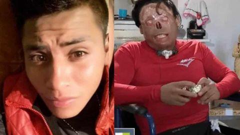 Sufre descarga que lo deja sin piernas y rostro; su familia lo abandona