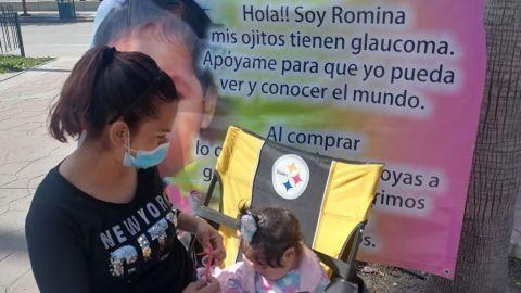 Romina tiene un año y no puede ver, sus papás venden agua para su operación