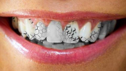 ¿Has soñado que se caen tus dientes? Aquí te explicamos que significa