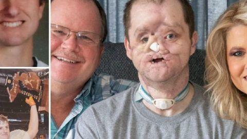 Mamá lucha por trasplante de cara de su hijo; sobrevivió a intento de suicidio