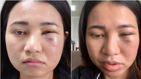 Mujer asiática es brutalmente golpeada en la cara en San Francisco