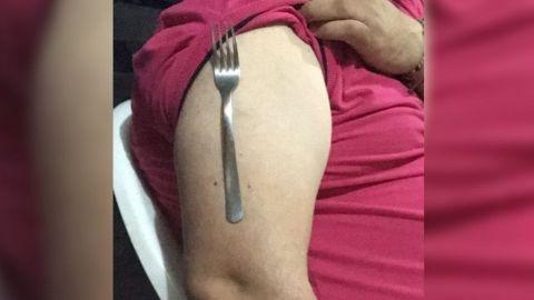 Usuarios se ponen tenedores sobre el brazo; creen que la vacuna implanta imanes