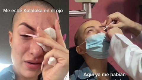 Fuertes imágenes: Mujer confunde sus gotas de ojos con pegamento 'Kola Loka'