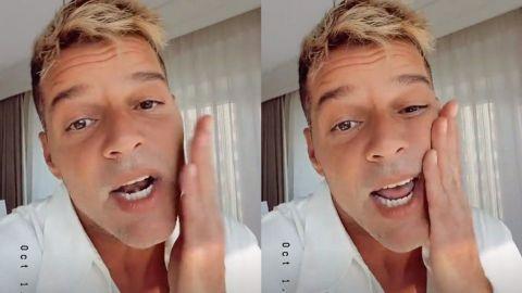 'No tengo nada que ocultar': Ricky Martin explica lo que le pasó en su rostro